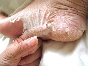 足の雑菌のエサである角質